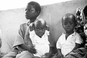 Adama, bénéficiaire de Tdh au Burkina Faso